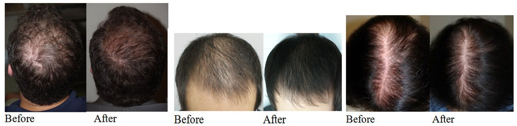 Hair Loss Treatment With Prp Stem Cells In Phoenix Scottsdale Az
